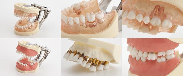 Periodontic Series